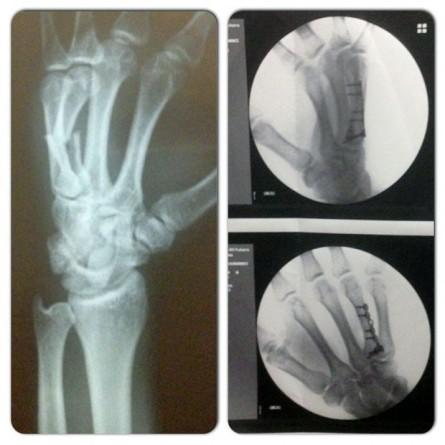 Viscardi exibiu em rede social a radiografia da fratura de sua mão, alegando que ela ocorreu antes da semifinal do TUF Brasil 2