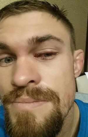 D. Cruickshank exibe lesão no olho após TUF 20 Finale.