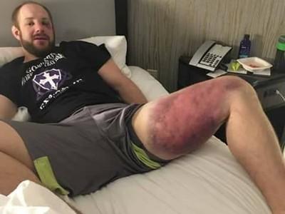 Torgeson (foto) após luta com Thiago Silva (FOTO: Reprodução)
