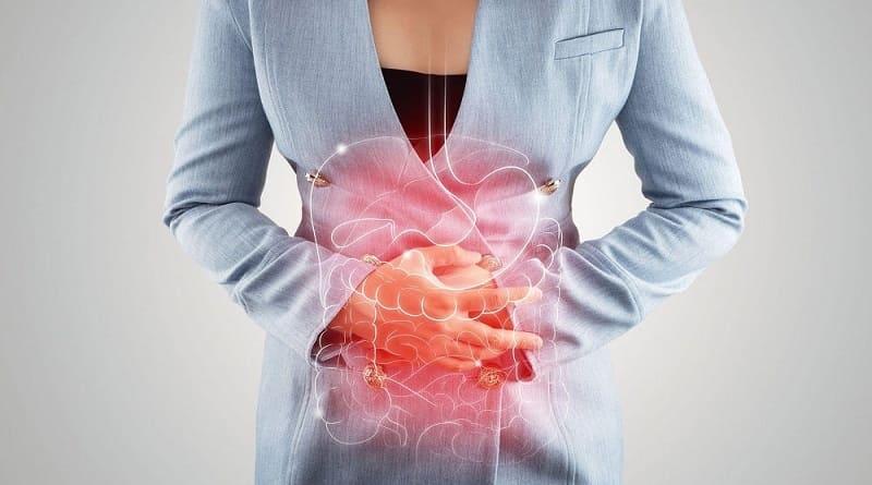 Sindrome del intestino irritable SII