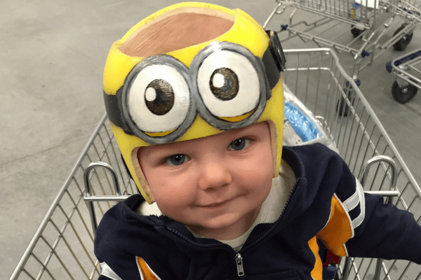 baby needs a helmet, picture of a baby in a yellow minion helmet