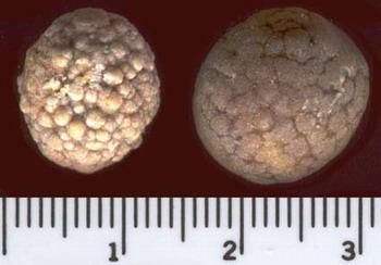 Желчного Пузыря Камни Фото