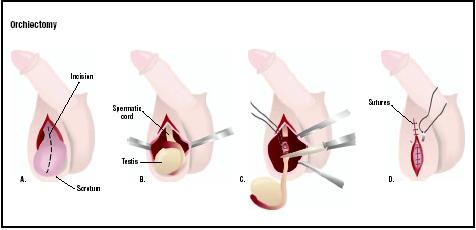 In an orchiectomy, the scrotum is cut open (A). Testicle covering is cut to expose the testis and spermatic cord (B). The cord is tied and cut, removing the testis (C), and the wound is repaired (D). (Illustration by GGS Inc.)