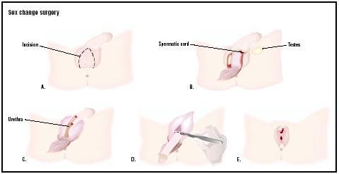 transman penis