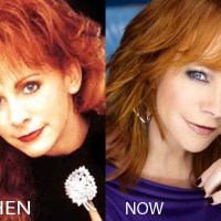 Reba Mcentire Plastic Surgery Before After, Breast Implants