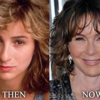 Jennifer Grey Plastic Surgery Before After, Breast Implants