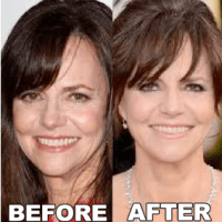 Sally Field Plastic Surgery Before After, Breast Implants