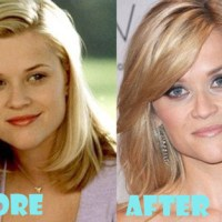 Reese Witherspoon Plastic Surgery Before After, Breast Implants