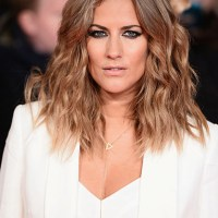 Caroline Flack Plastic Surgery Before After, Breast Implants