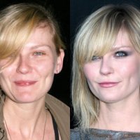 Kirsten Dunst Plastic Surgery Before After, Breast Implants