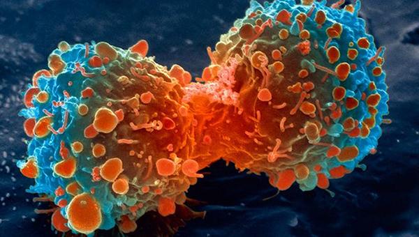 क्यान्सर पीडित बालकको उपचारमा सहयोग