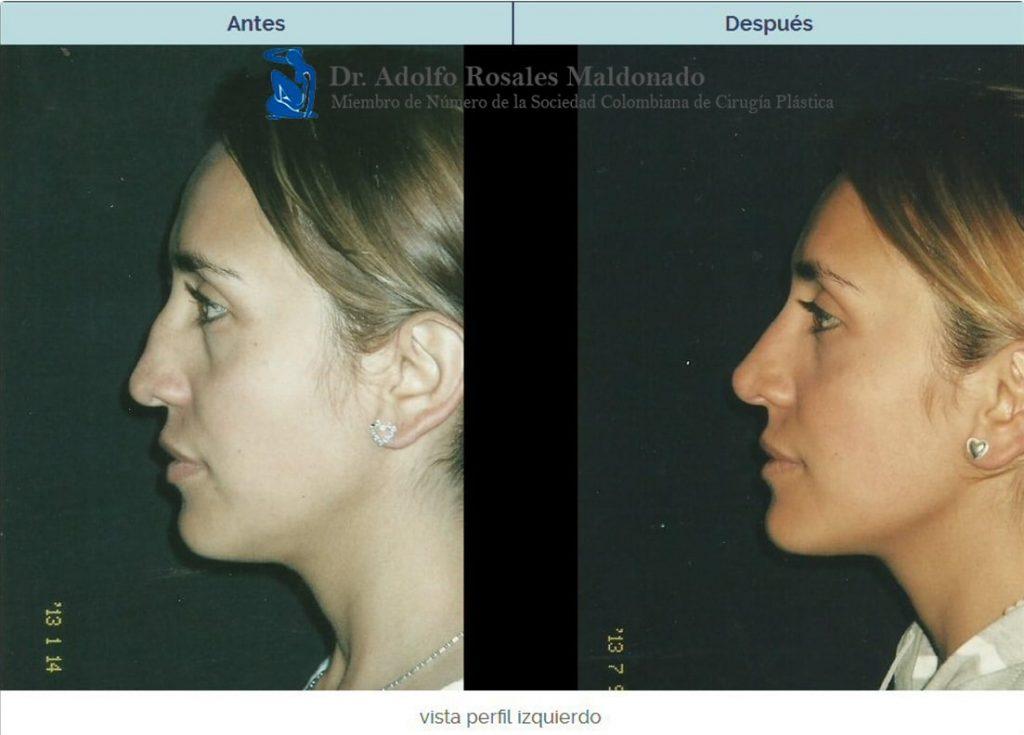 cirugia plastica de nariz costo