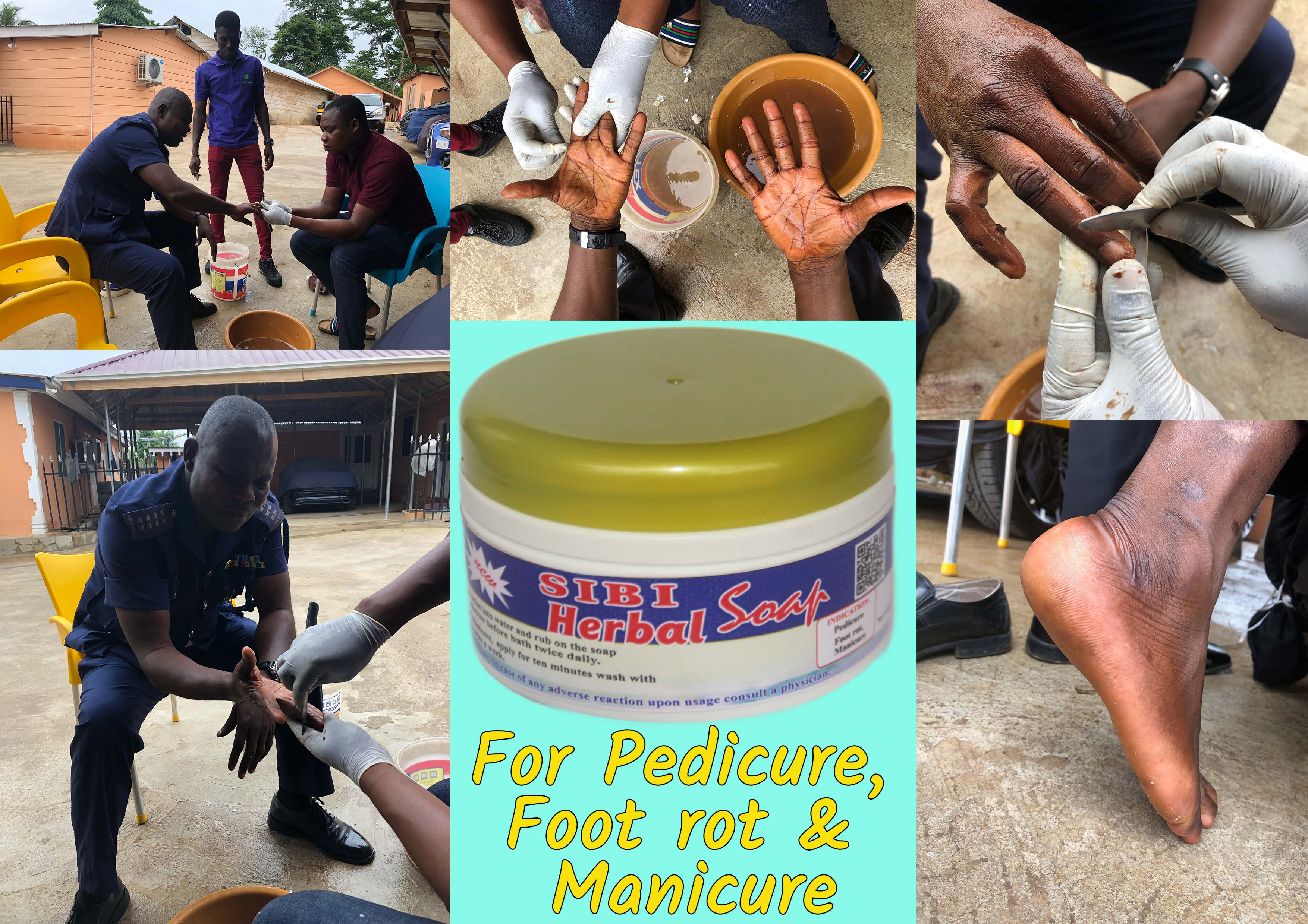 How to use Sibi Herbal Soap 1