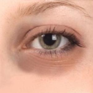 Dark Circles Around the Eyes Despite Yoga and SVA Diet ...