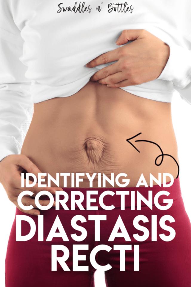 How to identify and correct Diastasis Recti