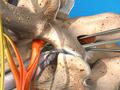 Lumbar Disc Microsurgery