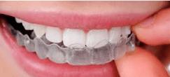 teeth with dental brace