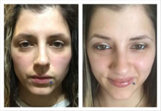 Before & After 14 Days. Paleo & Vegan Beauty Experts. Sweet Living Company. 100% Natural Ingredients. Handmade in Canada.
