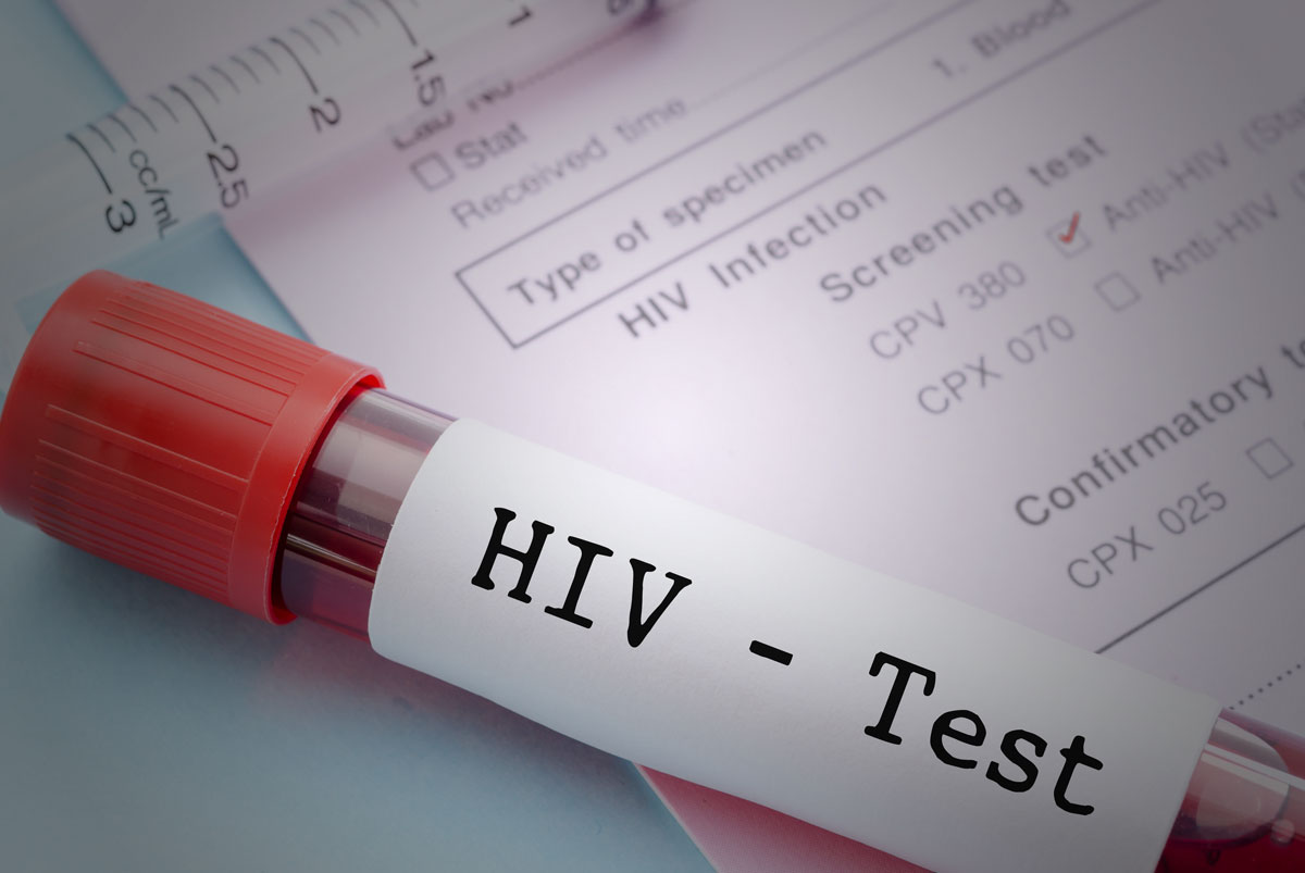 National Hiv Testing Day Swift Health Urgent Care Clinic