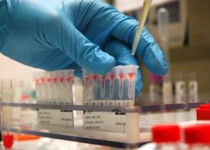 esting, testing - but who will fund the efforts of anti-doping agencies at a time when the integrity of testing labs is called into qustion? doping