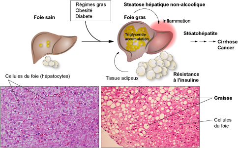 Fatty Liver and Metabolism - Maladies du foie - swissliver.ch