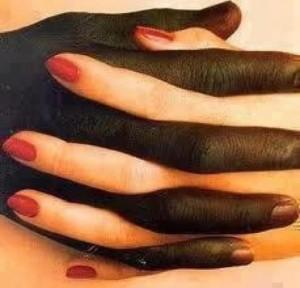 Släng rasismen på sophögen