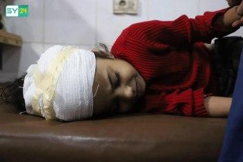 طفلة مصابة في الغوطة الشرقية