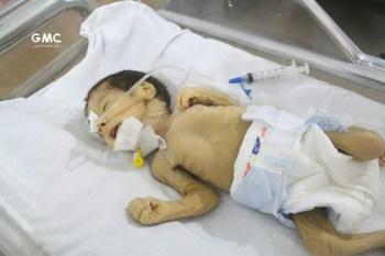 يونيسيف تدعو إلى تجنيب أطفال سورية أهوال الحرب