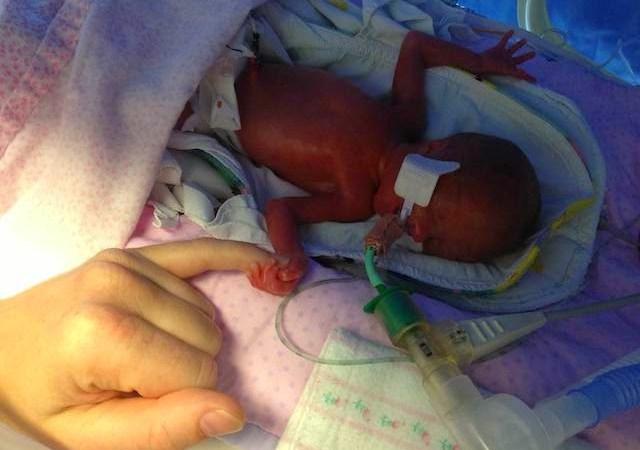 Bayi Prematur 5 Bulan Ini Divonis Dokter Akan Meninggal, Tapi Allah SWT Selamatkannya