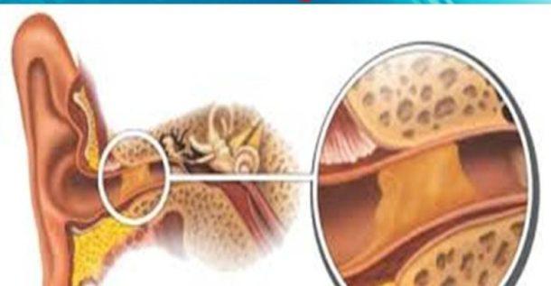 نتيجة بحث الصور عن انسداد الأذن