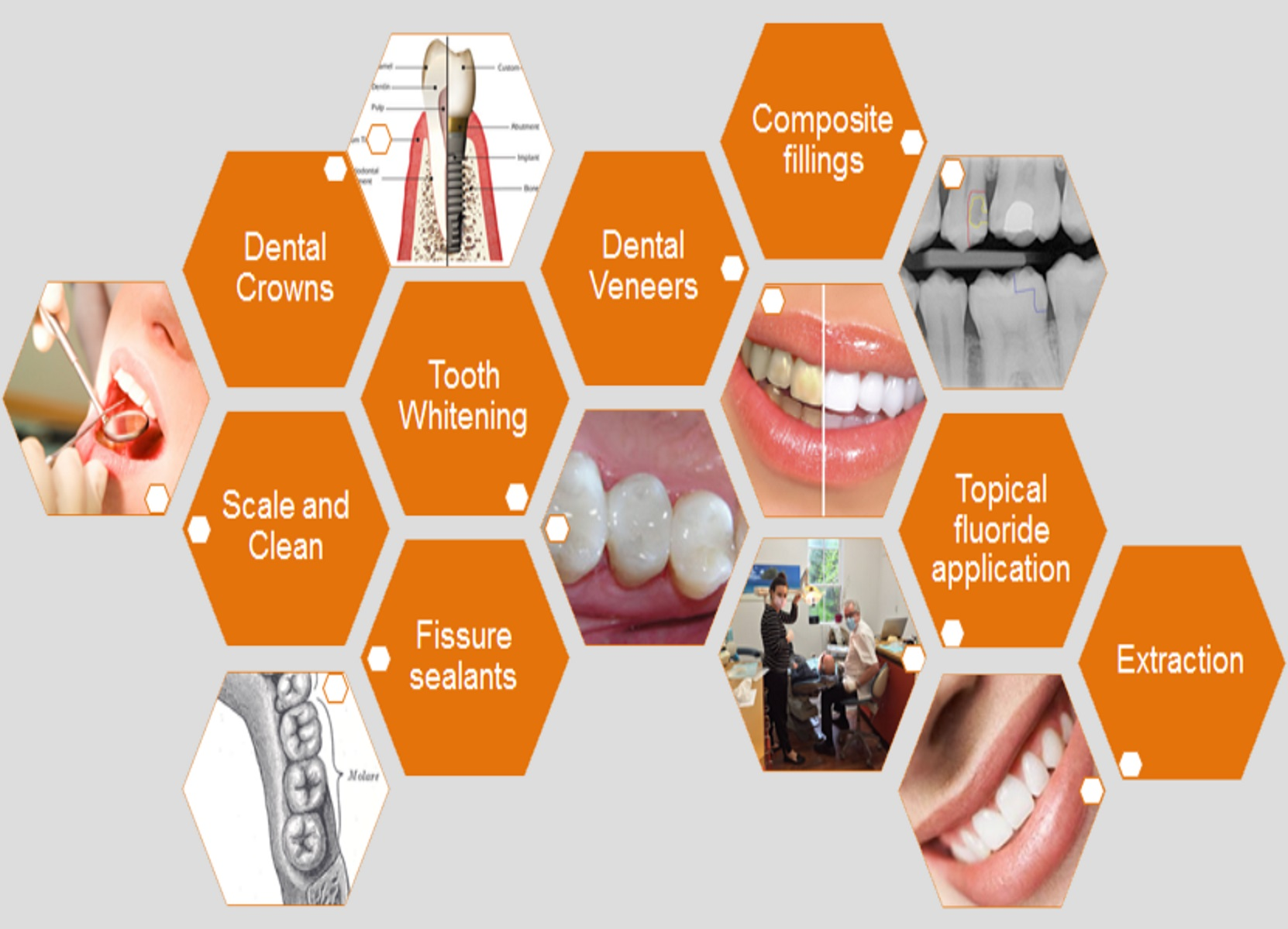 Dental treatment South yarra