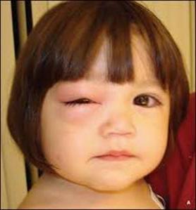 Ячмень на глазу у ребенка. Ячмень у ребенка: фото, причины ...