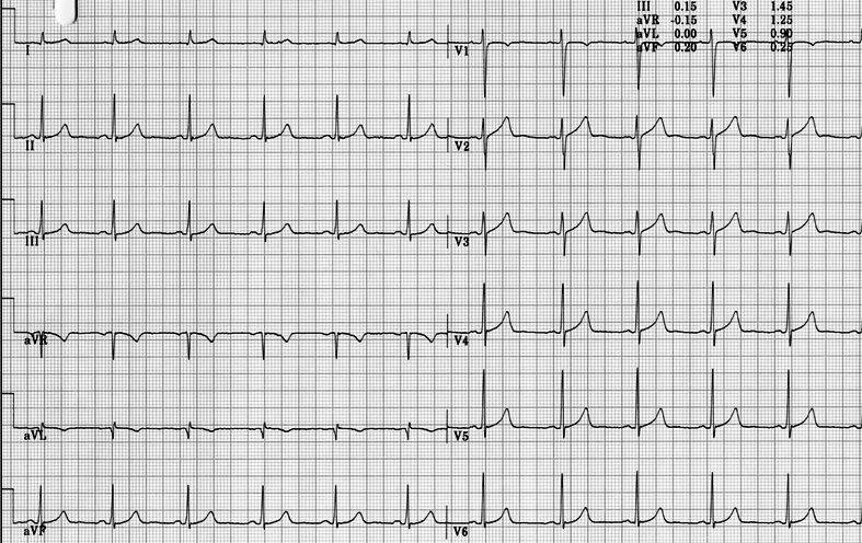 long-QT normal baseline ECG