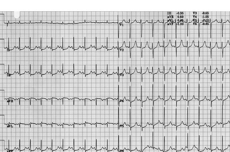 long-QT syndrome effort ECG