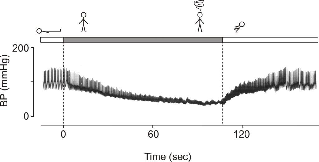 blood pressure squatting autonomic failure