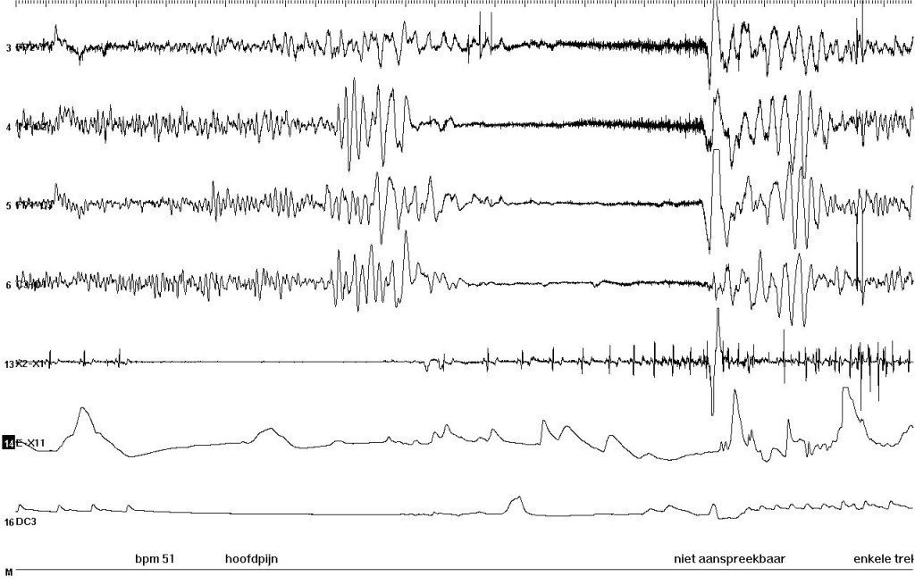 EEG during syncope