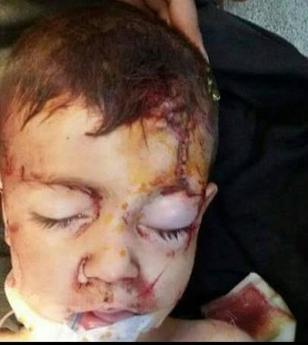 image-Unidentified child Jableh National Hospital is seeking his family
