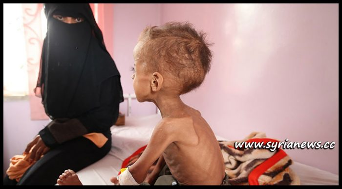 image-Yemen Health Situation