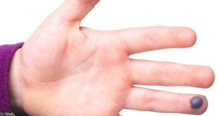 اعراض الجلطة في اليد