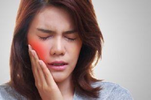 علاج قرحة الفم