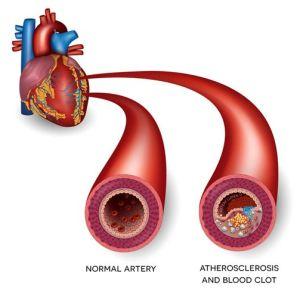 علامات جلطة القلب -1