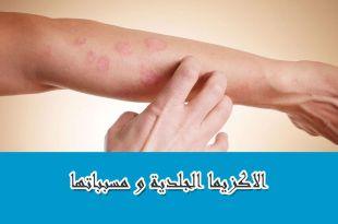 الإكزيما الجلدية والعناية بالبشرة
