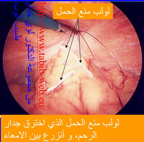 طبيب الوب موانع الحمل اللولب د لؤي خدام