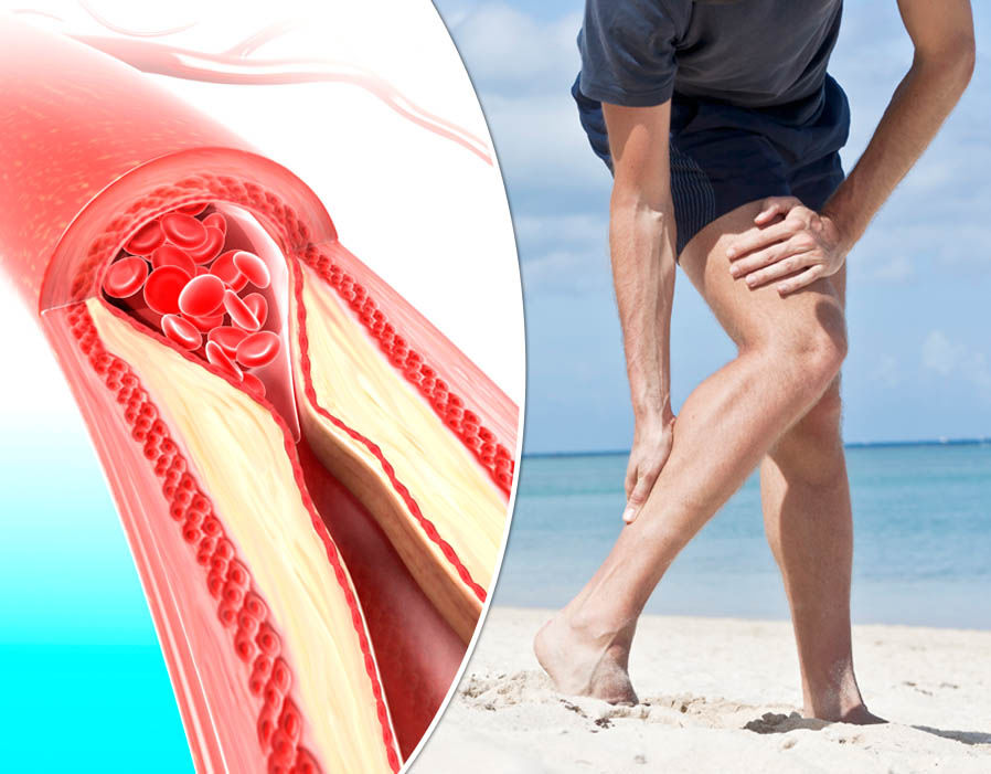 If You Have High Blood Pressure, Strokes or Varicose Veins, Start Doing These 6 Things