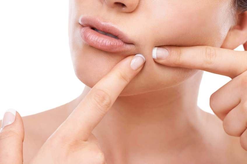 Popping pimples - tabib.pk