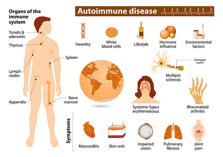 Autoimmune Disease Symptoms - Tabib.pk