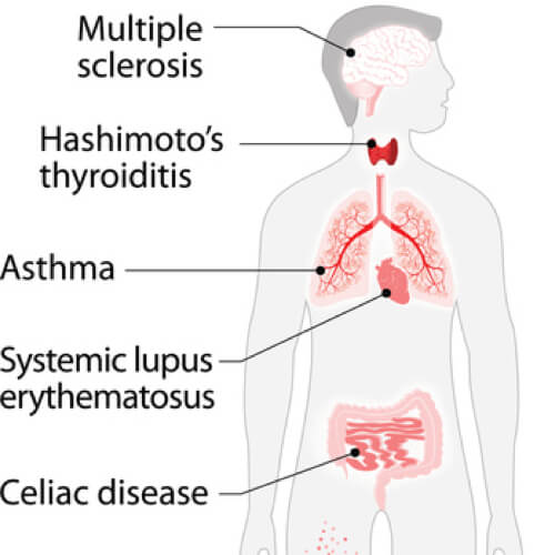 List Of Autoimmune Diseases - Tabib.pk