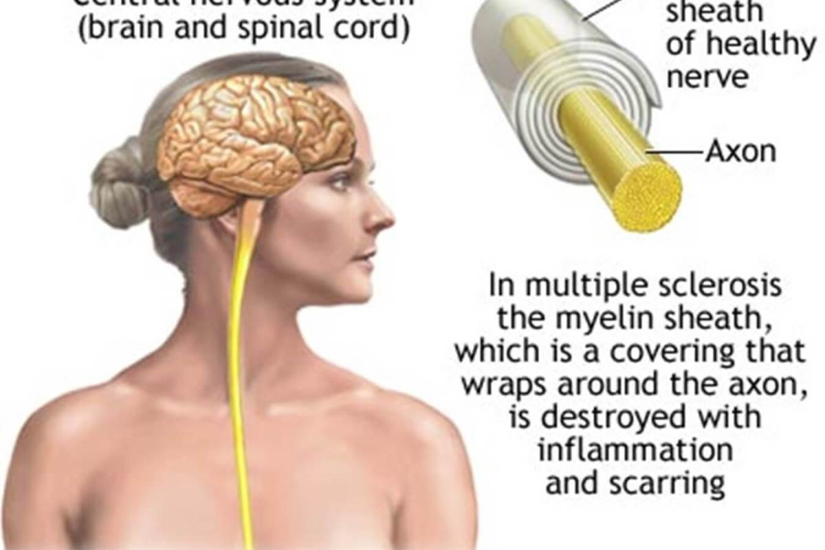 Multiple Sclerosis - Tabib.pk