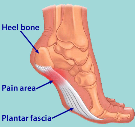What Can Cause Painful Heel And Ways To Eliminate It ...