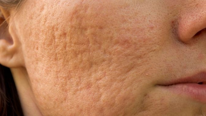 Resserrer les pores dilatés naturellement
